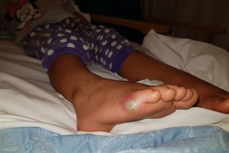 Девочка примерила туфли и подцепила смертельную болезнь