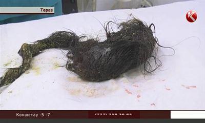 Волосы в желудке у ребенка фото