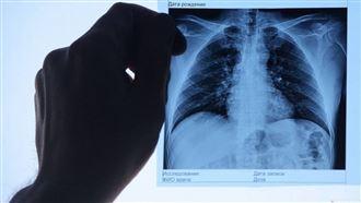 13 человек скончались за сутки от пневмонии с признаками COVID-19 в Казахстане