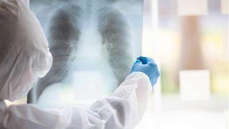 26 казахстанцев умерли от коронавируса и пневмонии